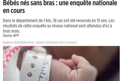 Le site Internet du magazine Le Point illustre l'affaire des bébés nés sans bras avec une main de nourrisson en gros plan.