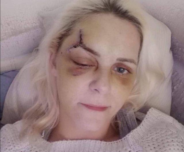 Vanessa blessée au flashball sur les Champs Elysées le 15 décembre 2018.