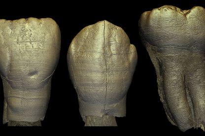 rendus 3D dentaires d'un enfant Homo archaïque