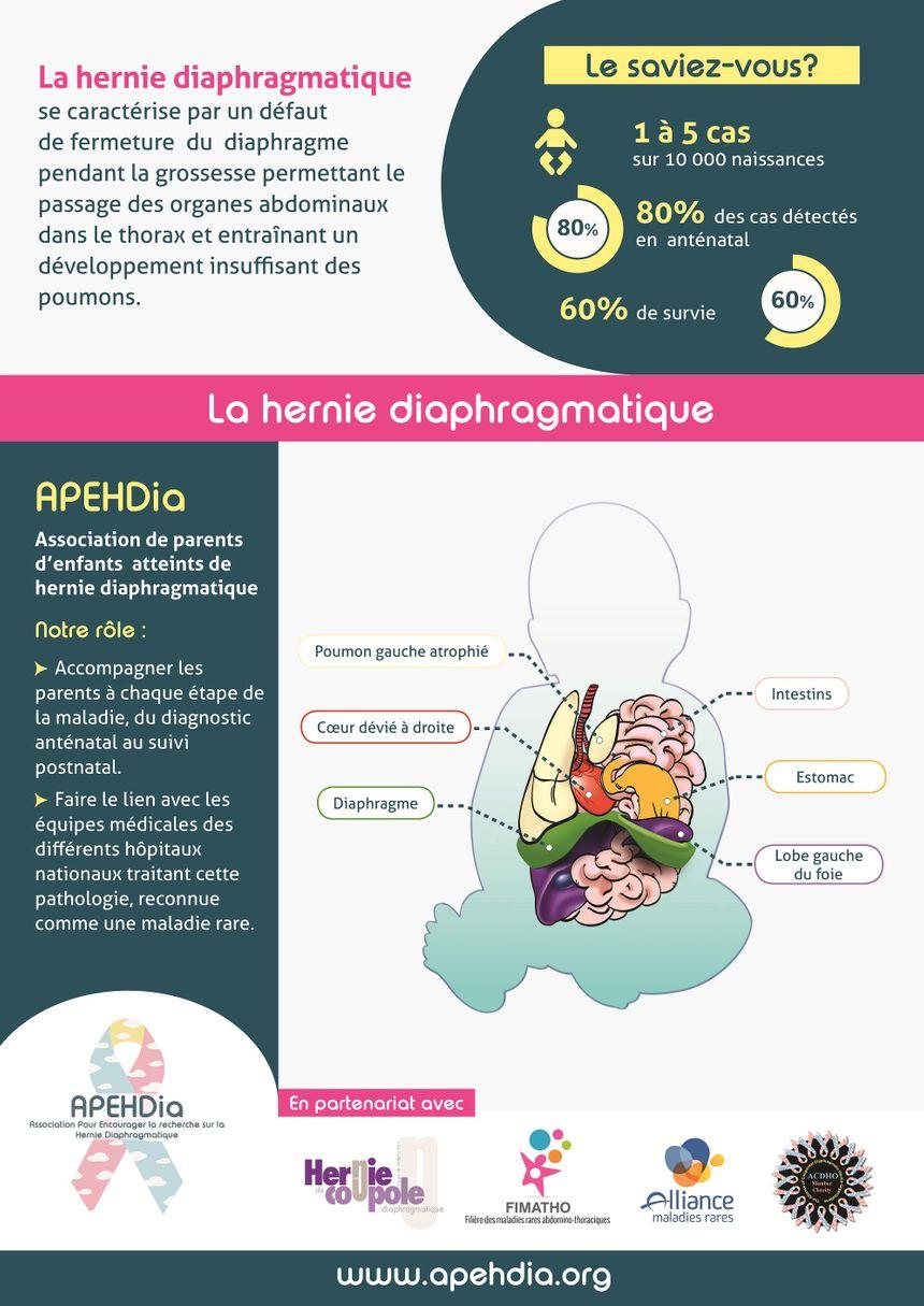 L'APEHDIA a publié ce poster pour mieux faire comprendre ce qu'est l'hernie diaphragmatique