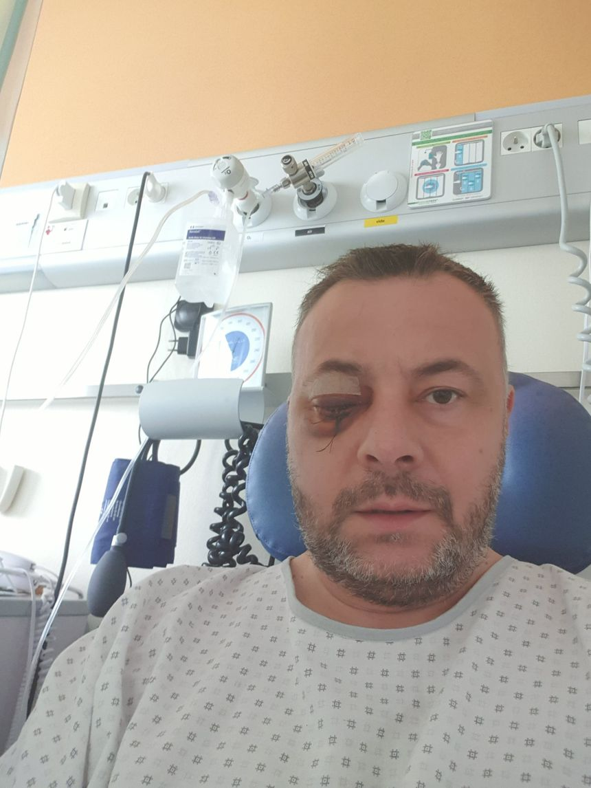 Le gilet jaune Olivier Fostier devra subir encore des opérations pour éviter que son visage ne s'affaisse