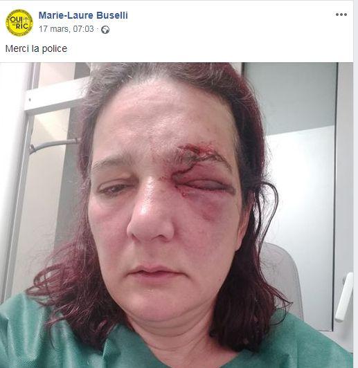 Marie Laure, samedi 15 mars, juste après son opération