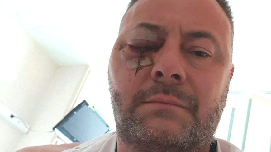 Olivier Fostier, gilet jaune, a perdu son oeil lors d'une manifestation à Charleville-Mézières