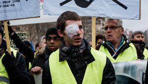 Franck Didron a perdu un œil à cause d'un tir de Flash-Ball, il manifestait le 2 février avec d'autres blessés
