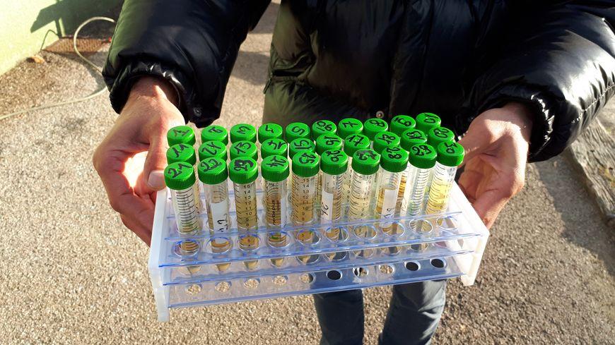 Les 53 Limougeauds ont participé à une campagne nationale d'analyses d'urines afin d'y rechercher des traces de glyphosate. (illustration)