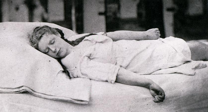 Désiré-Magloire Bourneville et Paul Regnard, iconographie photographique de la Salpêtrière, Paris, 1877-1880 : les médecins photographient les marqueurs supposés de l'hystérie, Charcot clamant que ce catalogue de symptômes est universel.