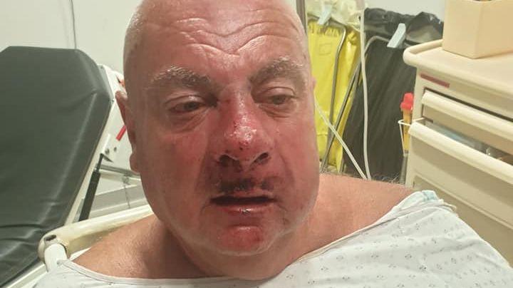 Bernard Marin a un traumatisme crânien, le nez fracturé, la mâchoire déboîtée et des dents cassées