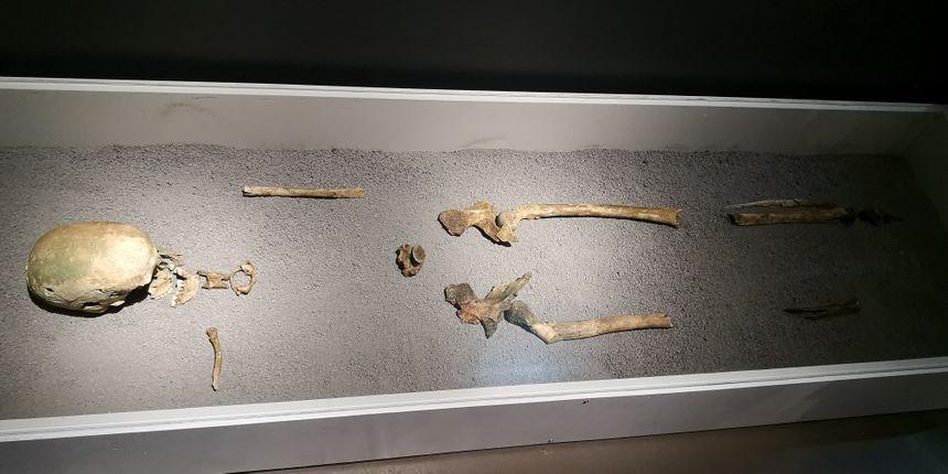 Le squelette très incomplet de la Dame de Vix