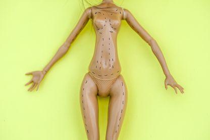 Féminisme et chirurgie esthétique