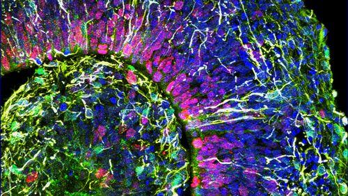 Mini-cerveaux de synthèse de laboratoire, de nouvelles questions éthiques