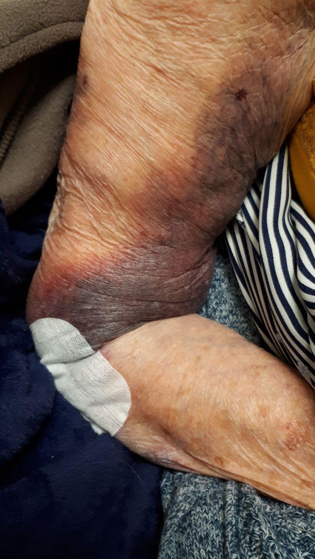 Lors d'une de ses visites, Christine a découvert un hématome sur la bras de sa mère, Huguette.