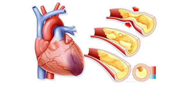 La formation de plaques d'athérome sur la paroi interne de l'artère peut conduire à son obstruction.