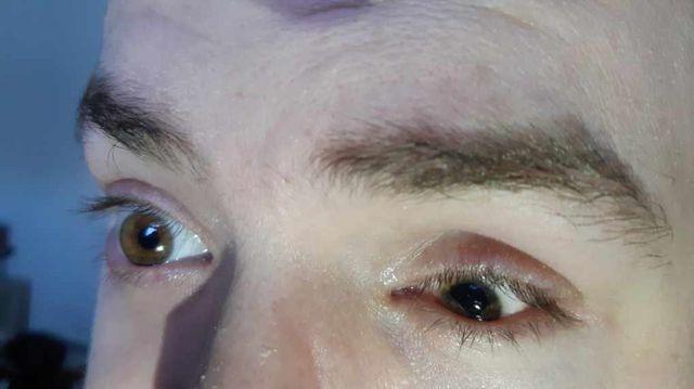 """L'œil de Gwendal. La pupille et l'iris ont comme """"fusionné""""."""