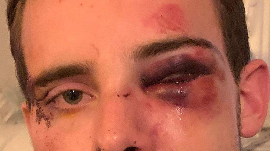 Voilà à quoi ressemblait le visage de Raphaël au lendemain de l'agression