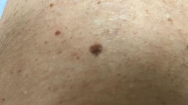 Montrer un grain de beauté à un dermatologue pour la première fois dans le Var est très compliqué