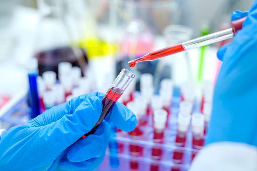 La sérothérapie, une solution transitoire contre la Covid 19 ?