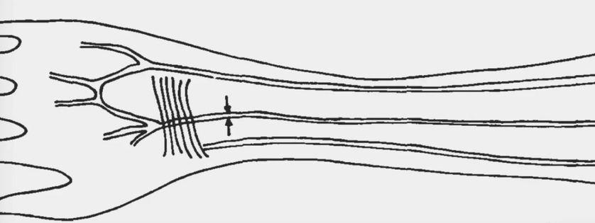 Un dessin du Dr Maciej Henneberg montrant l'emplacement de l'artère médiane.