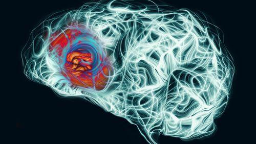 Une nouvelle technologie de microscopie cérébrale in vivo