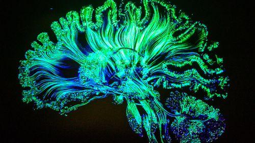 Cerveau et environnement : une relation plastique et durable. Avec Sonia Garel.