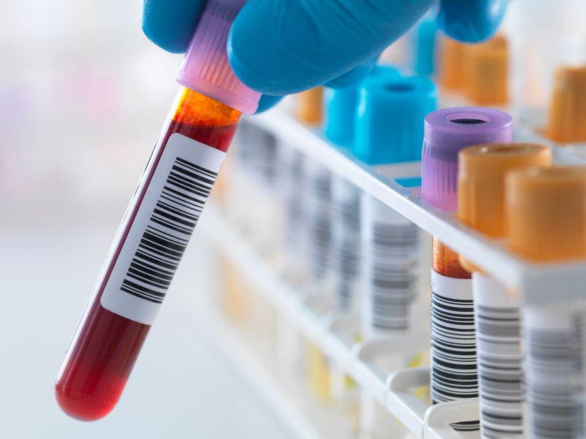 Maladie d'Alzheimer : la découverte de nouveaux biomarqueurs sanguins