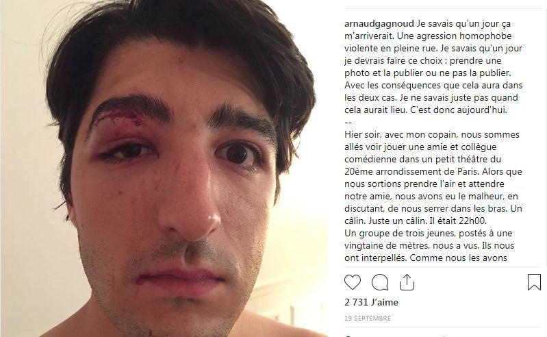 Capture d'écran, sur le compte Instagram d'Arnaud, du récit de son agression le 18 septembre 2018.