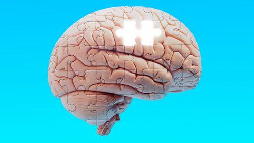 Nouveau médicament contre Alzheimer : l'espoir d'une guérison pour les malades ?