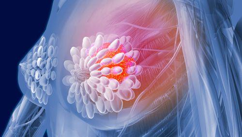 Cancer du sein : quand l'intelligence artificielle aide au dépistage